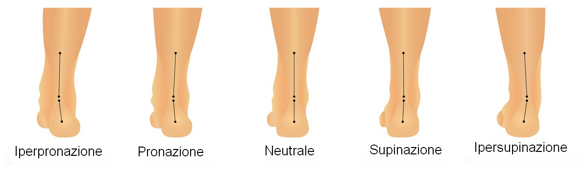 Pronazione - Supinazione - Iperpronazione - Ipersupinazione